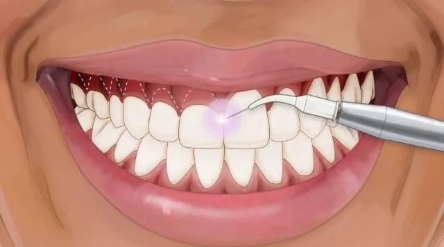 انواع روش های درمان لبخند لثه ای | شرکت نخ دندان مینا