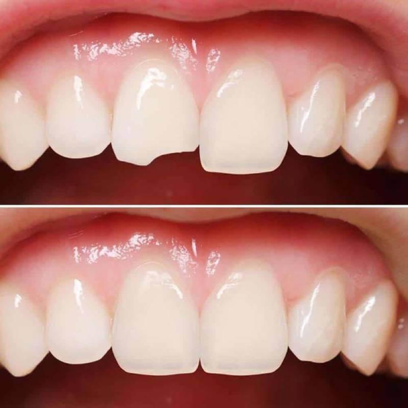 کامپوزیت دندان | شرکت نخ دندان مینا