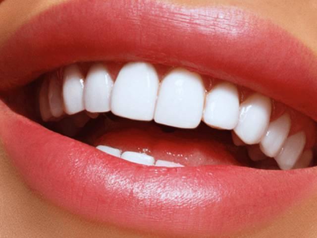 لمینت یا کامپوزیت دندان | شرکت نخ دندان مینا