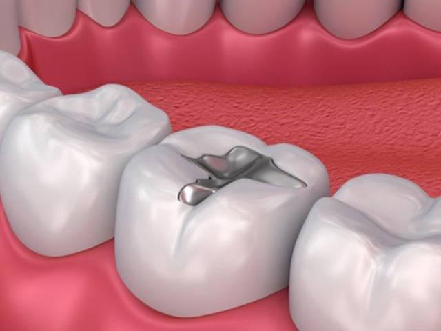 تفاوت کامپوزیت با آمالگام چیست؟ | شرکت نخ دندان مینا