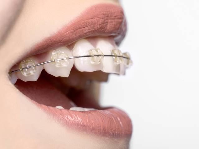 شناخت کامل انواع سیم ارتودنسی در براکت | شرکت نخ دندان مینا