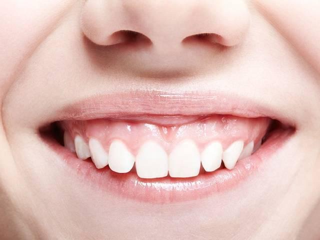 لبخند لثه ای یا gummy smile چیست؟ | شرکت نخ دندان مینا