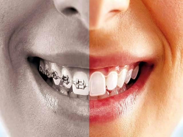 10 عارضه درمان ارتودنسی | شرکت نخ دندان مینا