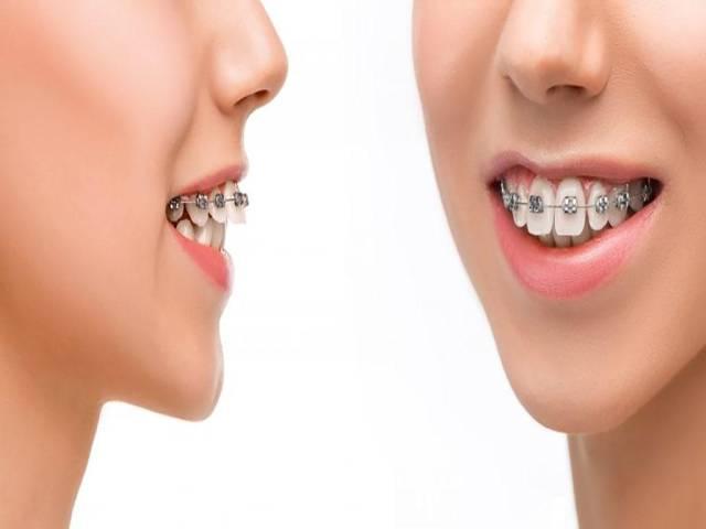اوربایت چیست و چگونه درمان می شود | شرکت نخ دندان مینا