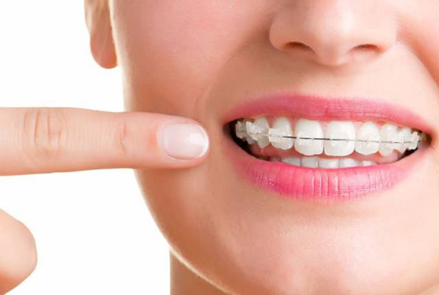 انواع اوربایت | شرکت نخ دندان مینا