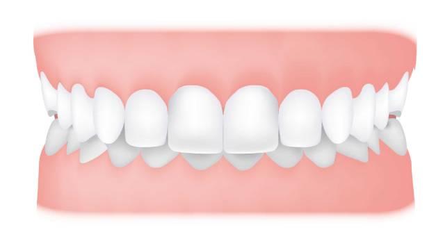 اوربایت چیست | شرکت نخ دندان مینا