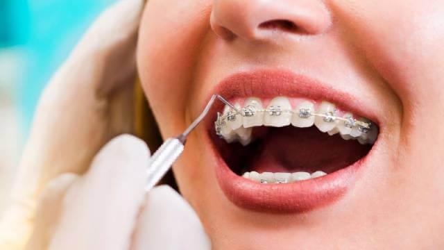 درمان ارتودنسی   شرکت نخ دندان مینا